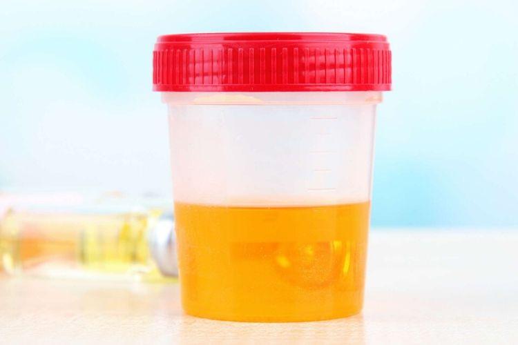 urine jaune fonce